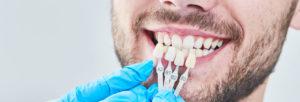 La facette dentaire